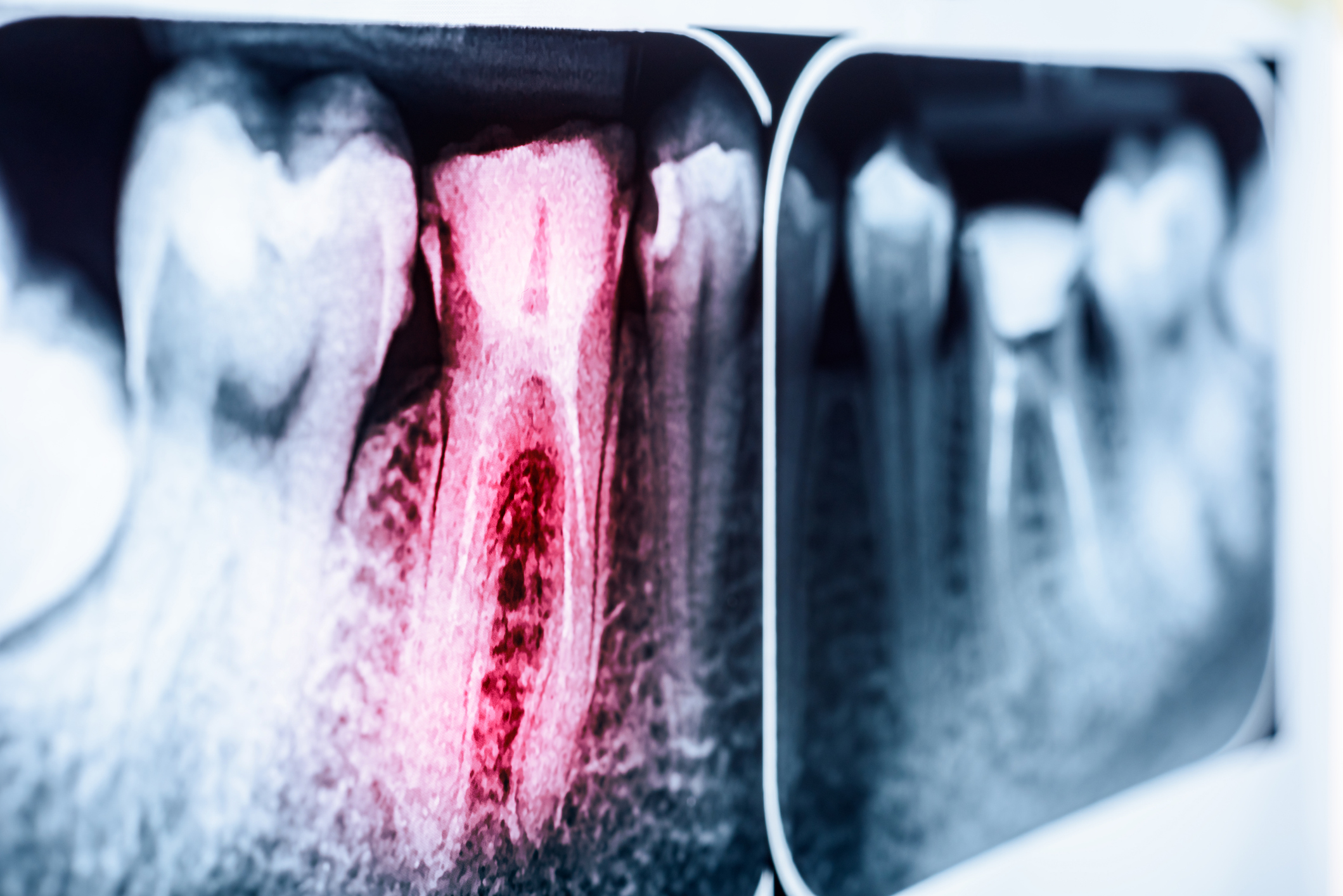 Pain Of Tooth Decay On X-Ray